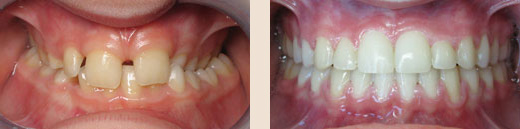 Posterior crossbite with severe overbite before & after