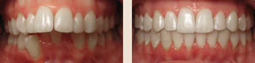 Severe overjet before & after