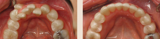 Severe mandibular crowding before & after
