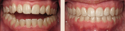 Anterior openbite before & after