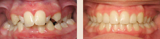 Bilateral posterior crossbite before & after