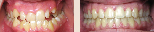 Anterior and posterior crossbite before & after